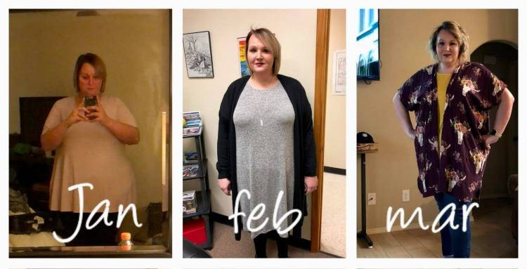 Barbara Ellis Tells A Story Of A Botched Bariatric Surgery In The States To Success At Pompeii Surgical Varient News Magazine