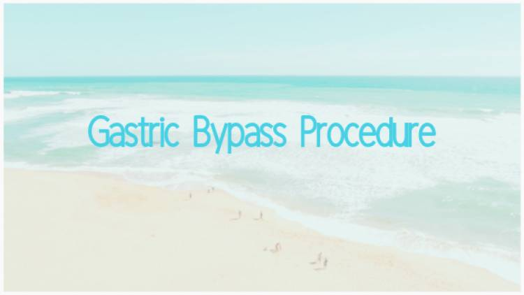 Gastric Bypass Procedure
